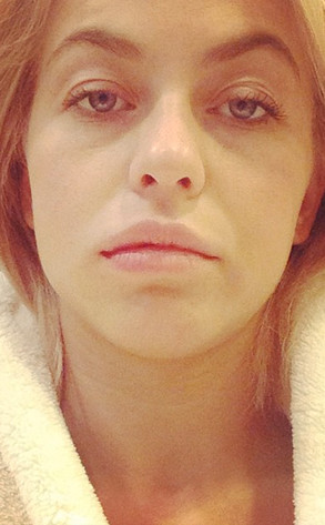 Julianne Hough, Root Canal, Instagram