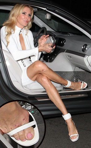 Brandi Glanville S Bruised Feet 5 Shoes She Should Have