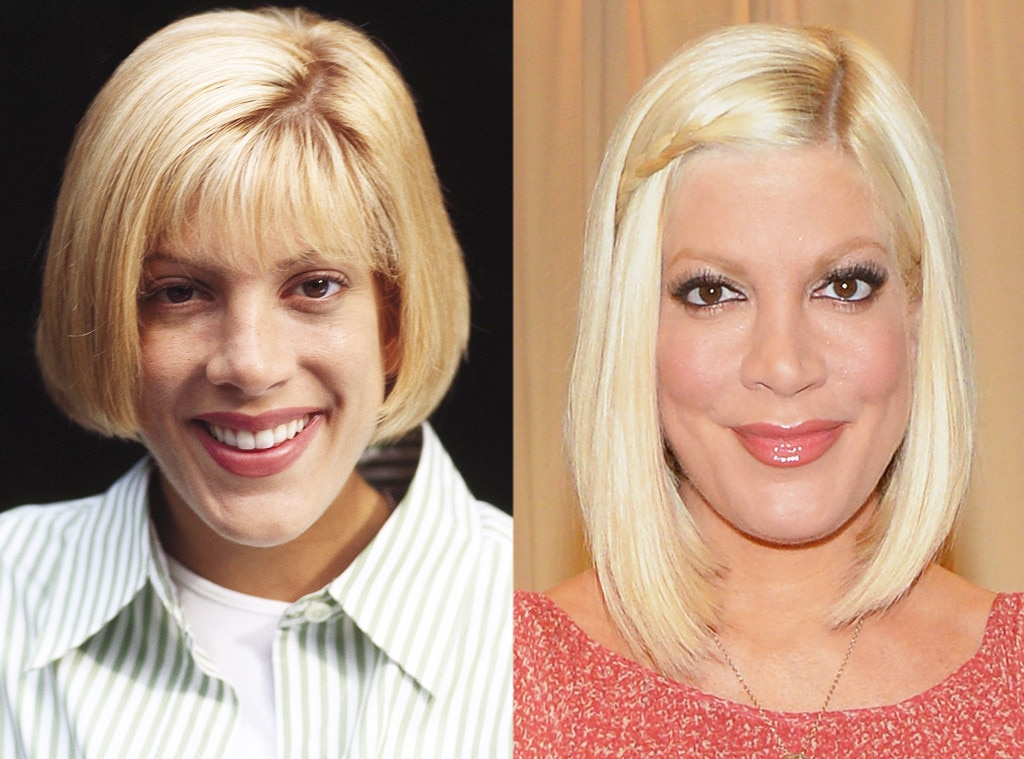 plastic surgery after before Tori spelling