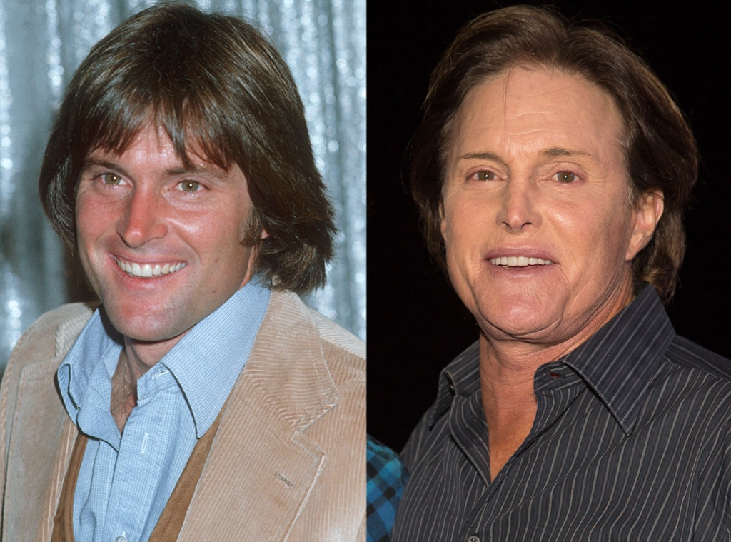 Bruce Jenner From Better Or Worse Celebs Who Have Had Plastic Surgery E News