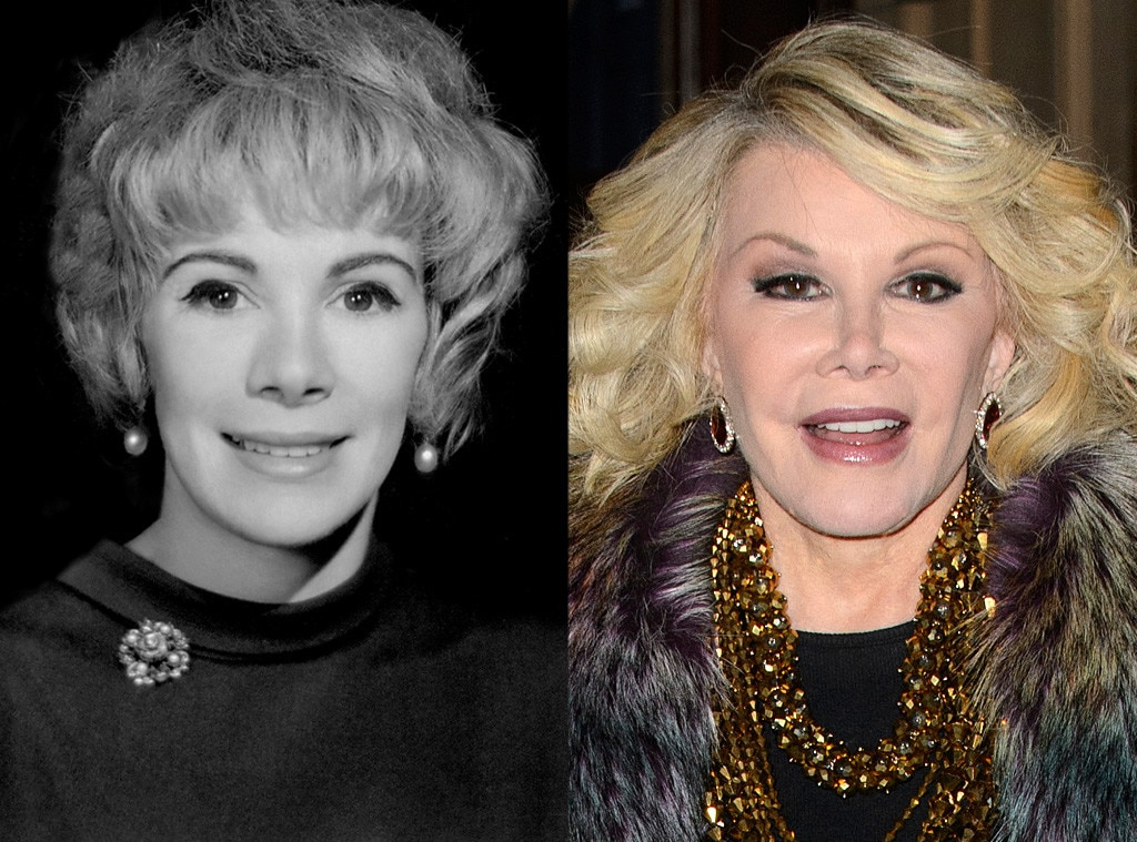 Joan Rivers, Plastic Surgery Before And After