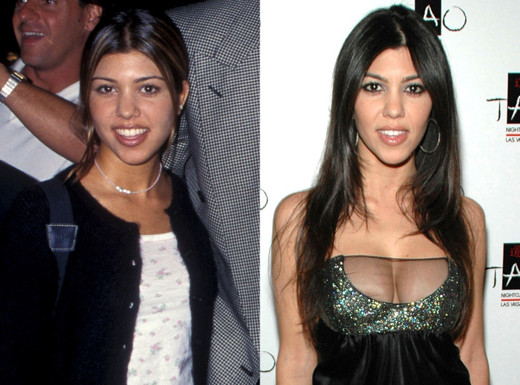 Kourtney Kardashian, Plastic Surgery Before And After