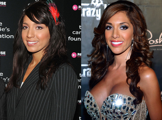 Farrah Abraham, Plastic Surgery Before and After