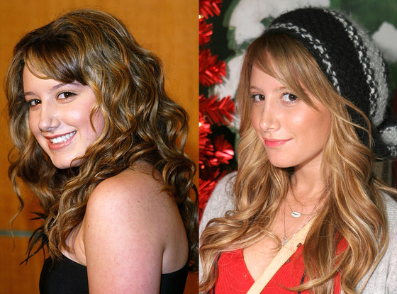 Ashley Tisdale,  Plastic Surgery Before And After