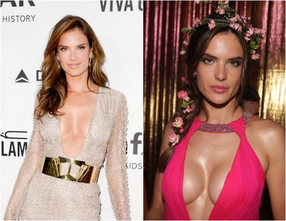 Alessandra Ambrosio antes e depois do silicone