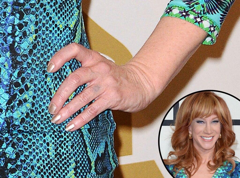 Kathy Griffin, Grammys, Manicure