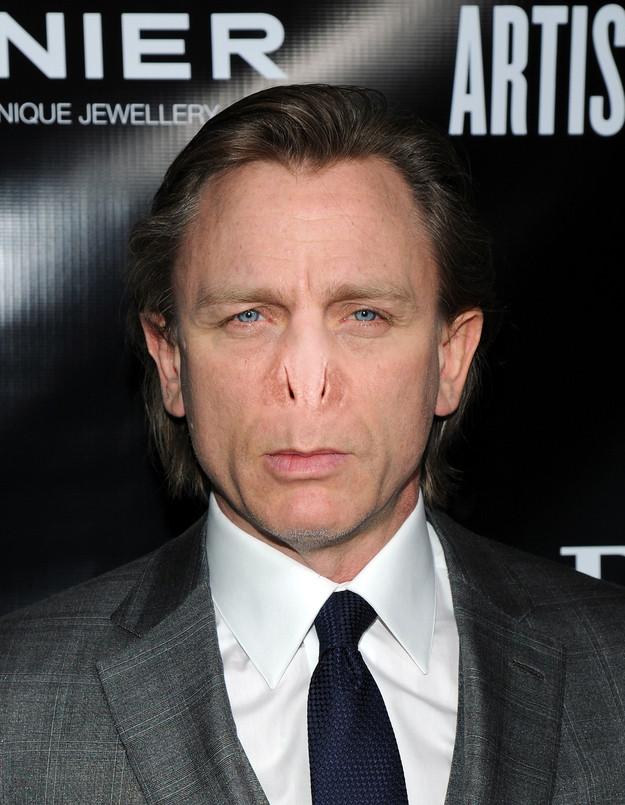 Famosos nariz Voldermort