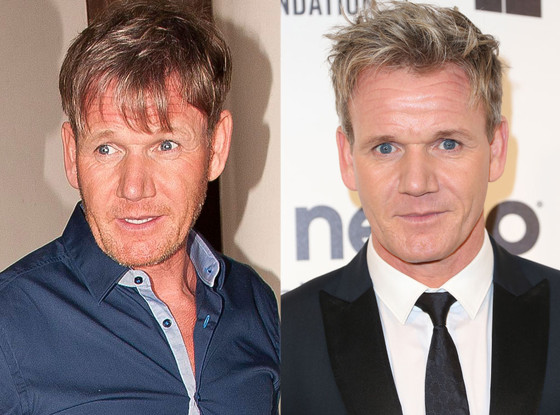 what happened to gordon ramsay s hair see his dramatic new