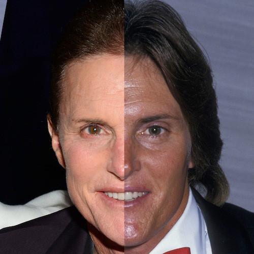Mudança no rosto das Kardashians