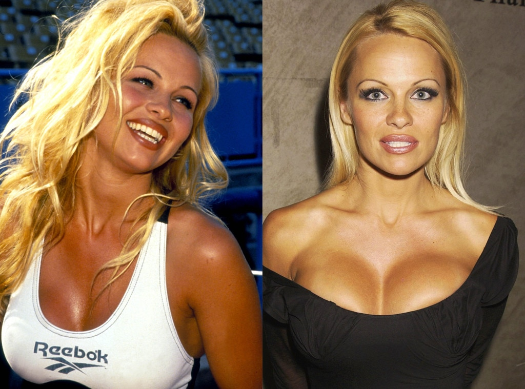 pamela anderson from better or worse celebs who have had plastic