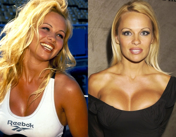 Pamela Anderson From Better Or Worse Celebs Who Have Had