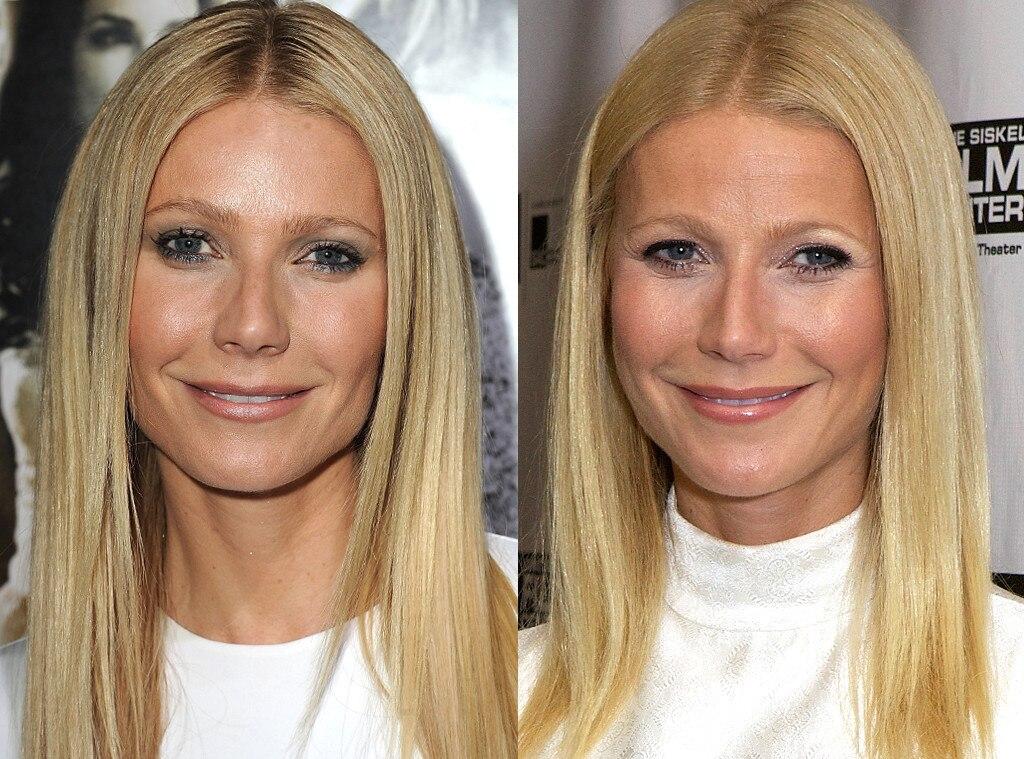 Has gwyneth paltrow had breast surgery