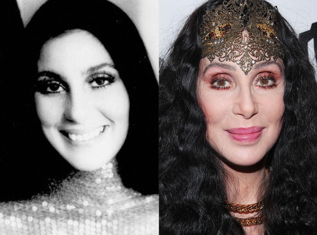 Cher, Plastic Surgery