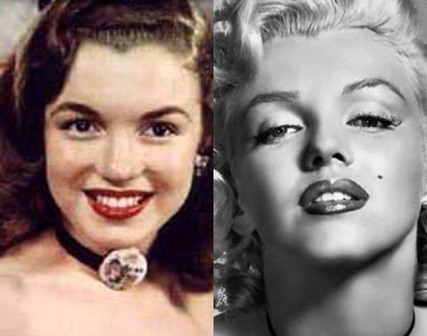 As famosas com plástica no nariz