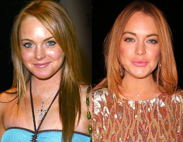 Lindsay Lohan From Celebs Who Deny Getting Plastic Surgery