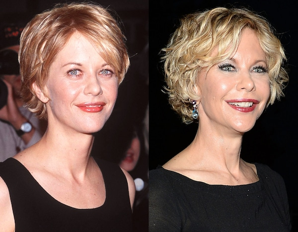 Meg Ryan From Celebs Who Deny Getting Plastic Surgery E