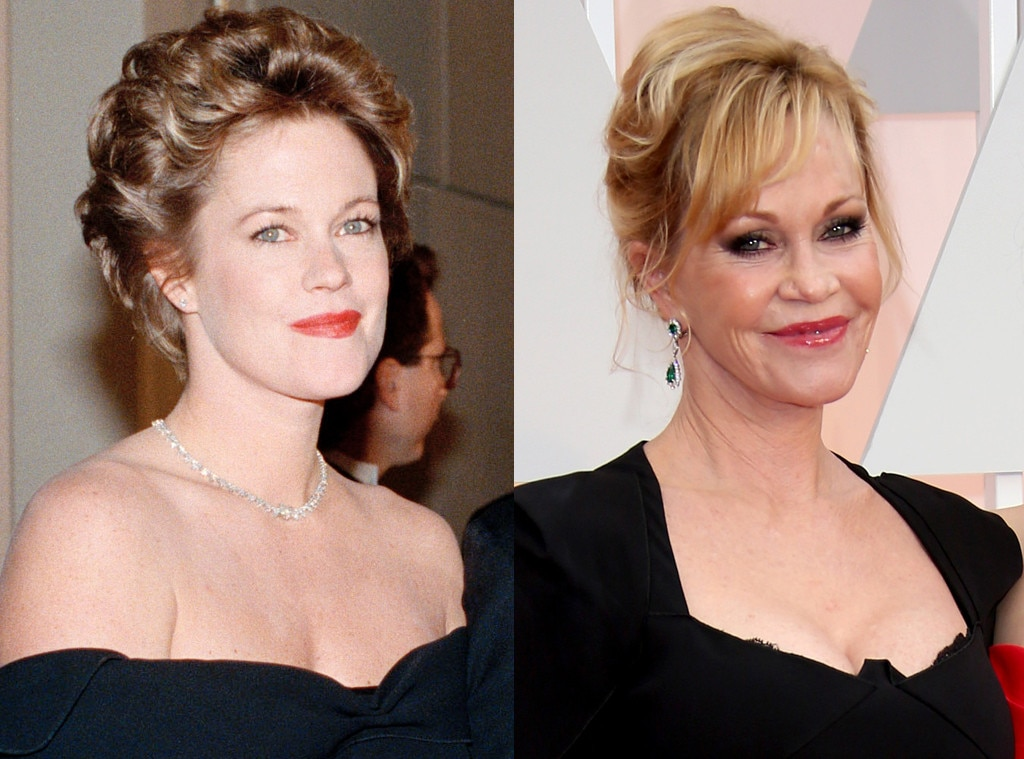 Melanie Griffith nose