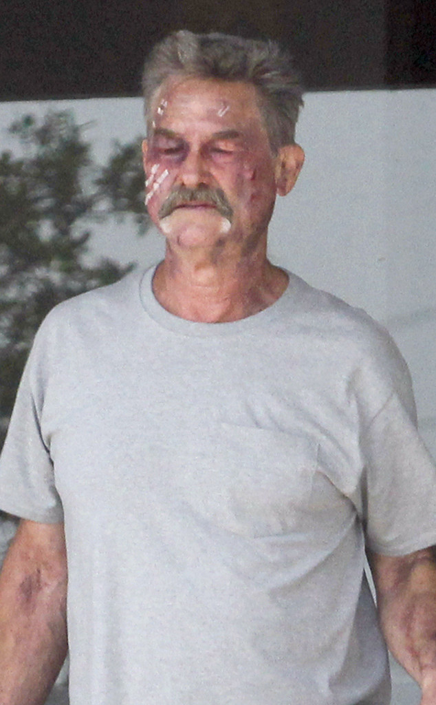 Why Is Kurt Russell S Face Covered With Cuts And Bruises