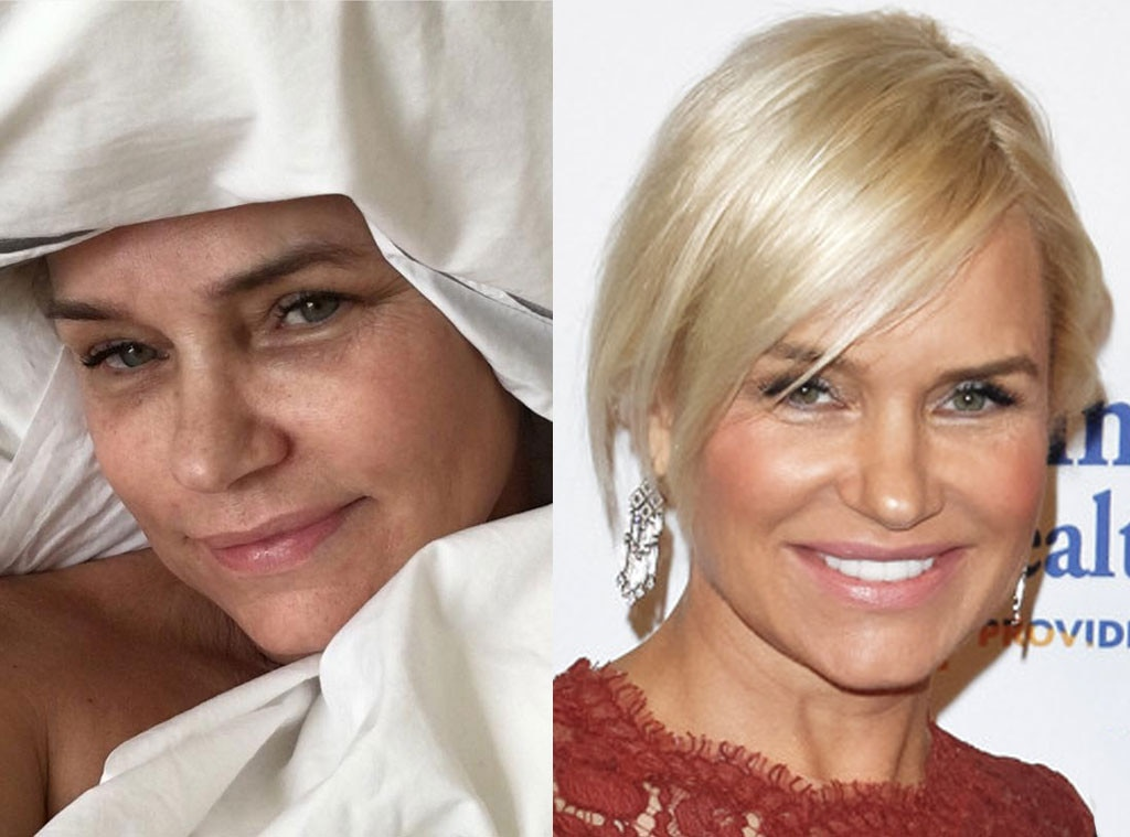 "Yolanda Foster -  The  Real Housewives of Beverly Hills  star, who has chronic Lyme disease, posted on her  Instagram  page a makeup-free selfie on Jan. 16, 2016, saying, ""Just because some ppl are done with your journey, doesn't mean your journey is done #AnotherWastedSaturday #LifeFromTheSideLines #Spoonie #LymeDiseaseAwereness #DeterminedToFindACure #AffordableForAll PS: Bad Selfie Day."""