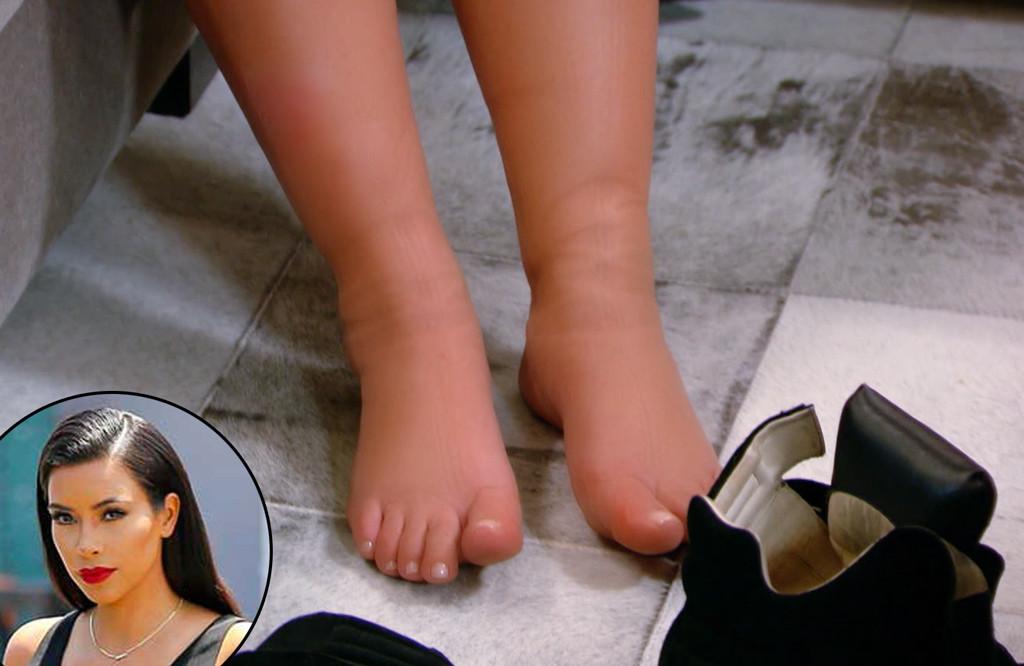 Kim Kardashian, Swollen Feet