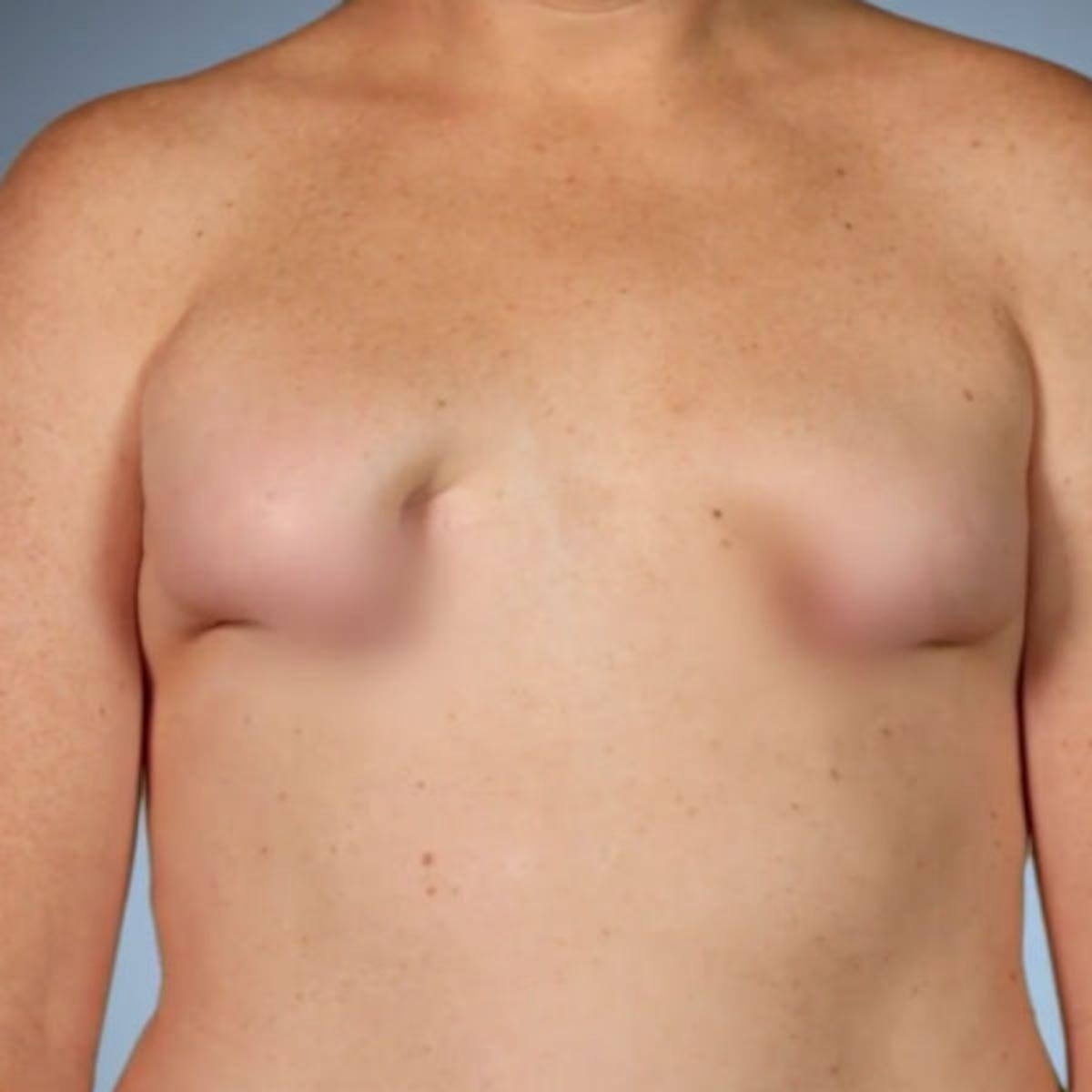 My look breasts at ¨Hey, look