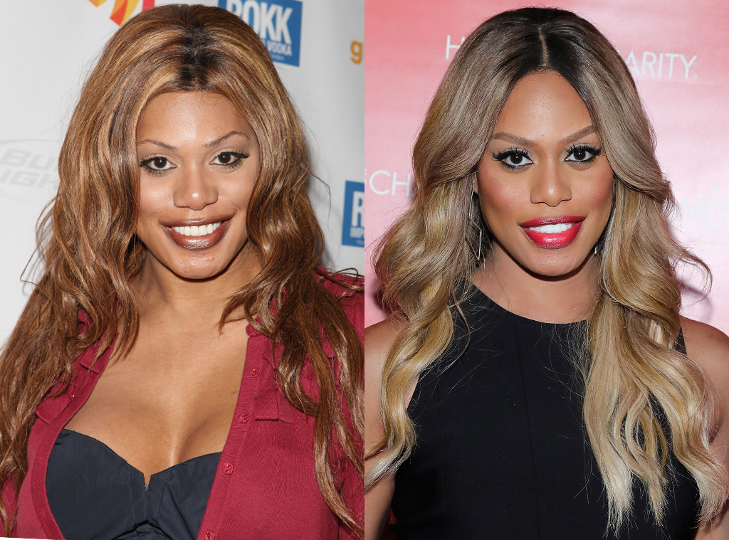 Laverne Cox, Before and After, Nose Job Denial