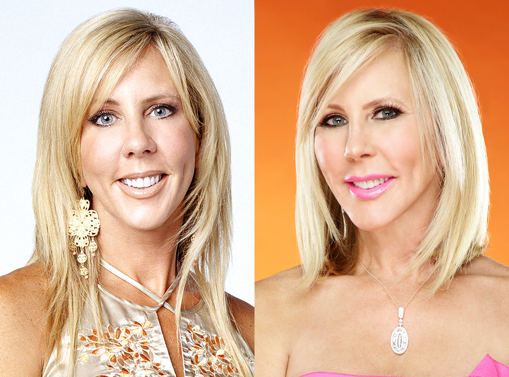 Real Housewives Transformations, Vicki Gunvalson