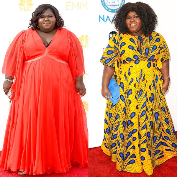 Gabourey Sidibe Gets Candid About Her Secret Weight Loss Surgery I