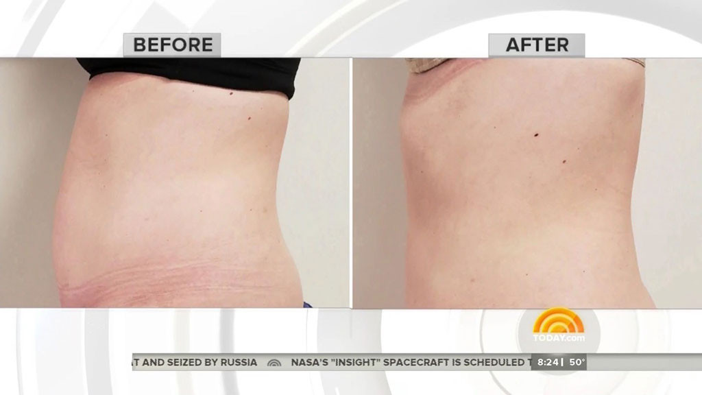 Savannah Guthrie, Jenna Bush Hager, CoolSculpting