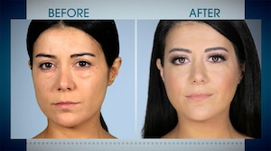 Botched, Before & After