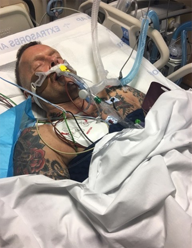 bob harper shares private photo of himself in a coma 1 year after