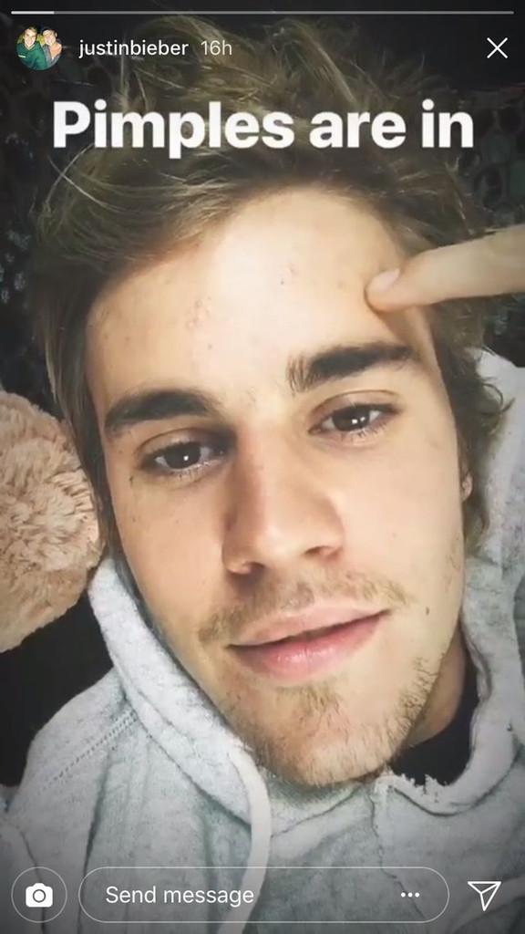 Justin Bieber, Acne