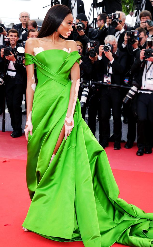 ESC: Cannes 2018, Winnie Harlow