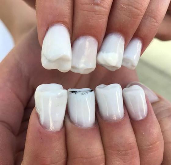 Nail art de dente