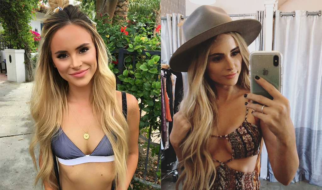 Bachelor Nation S Amanda Stanton Blogs About Breast Augmentation
