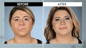 Botched 418, Before and After