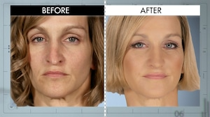 Botched 419, Before & After