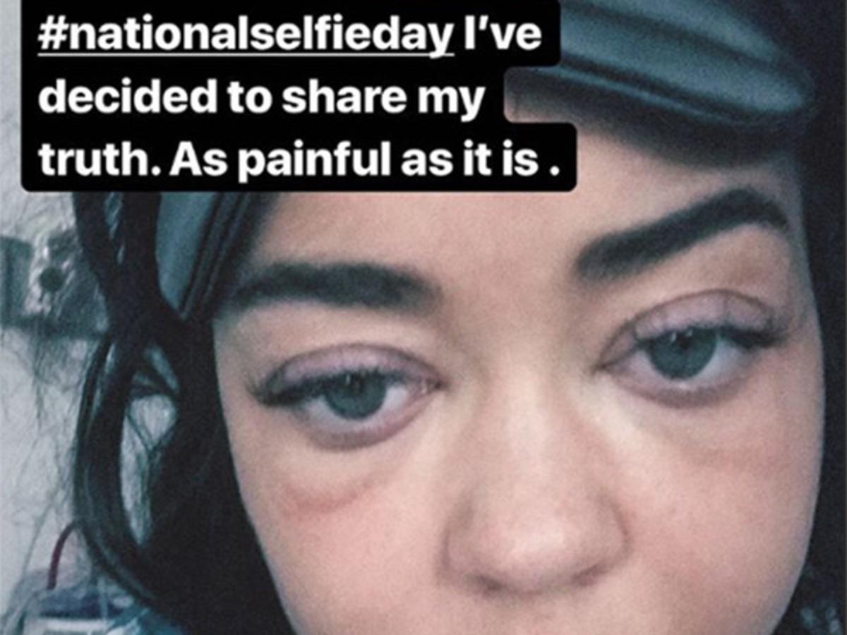 Sarah Hyland surpreende ao aparecer com o rosto inchado em hospital