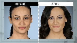 Botched 422, Before & After
