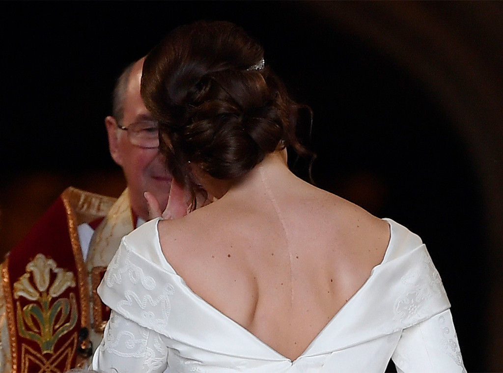 Back Scar, Princess Eugenie Royal Wedding