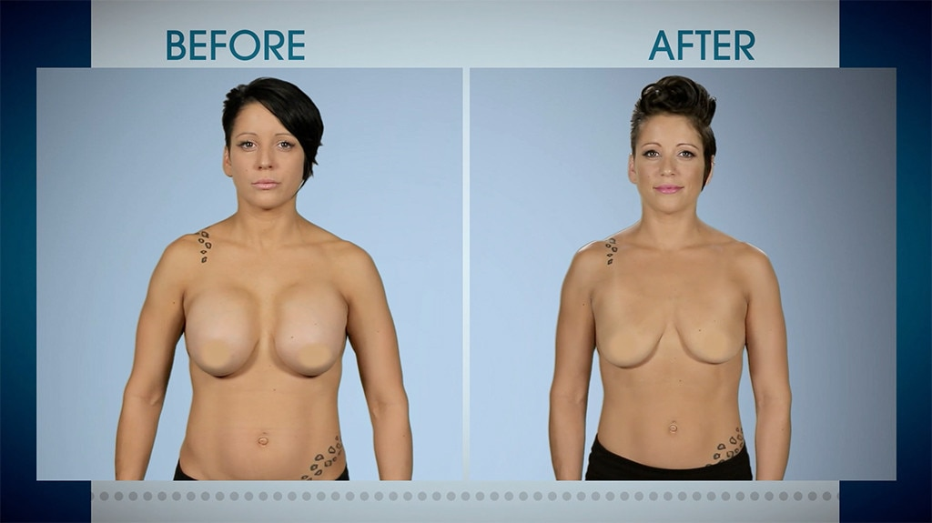 Botched 507, Before & After
