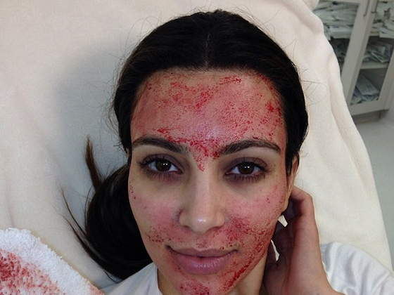 Kim Kardashian Files Lawsuit Over Infamous Vampire Facial