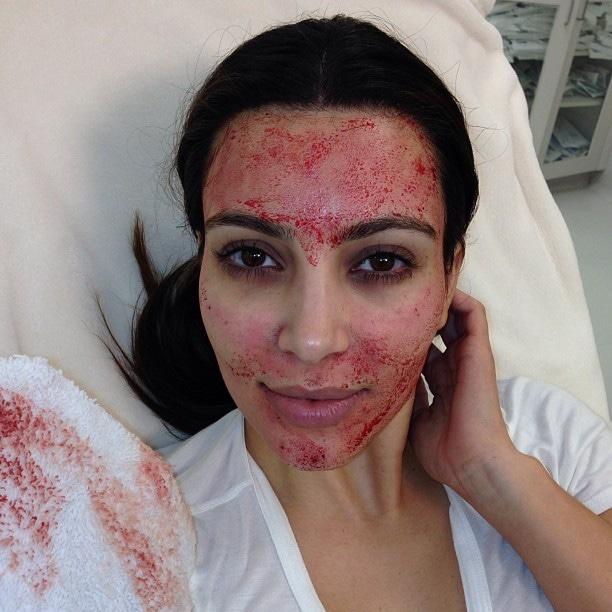 Kim Kardashian, Instagram, Vampire Facial