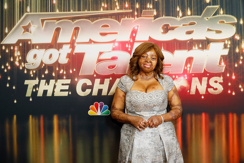 Kechi Okwuchi -  Kechi Okwuchi, a survivor of a plane crash, made it to the finals of  AGT  season 12. Her singing got her the Golden Buzzer during  The Champions .