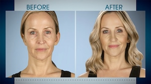 Botched 513, Before & After