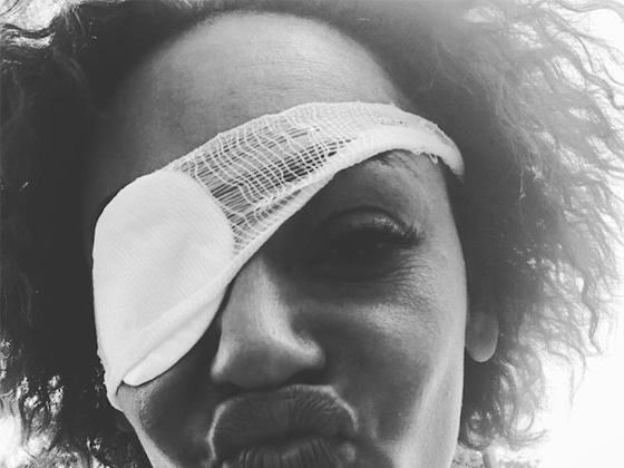 "Mel B Sets the Record Straight on Rumors She Went Blind: ""I Was Not OK"""