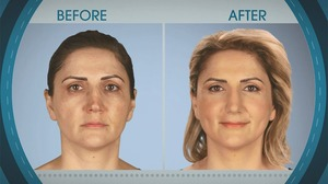 Botched 609, Before & After