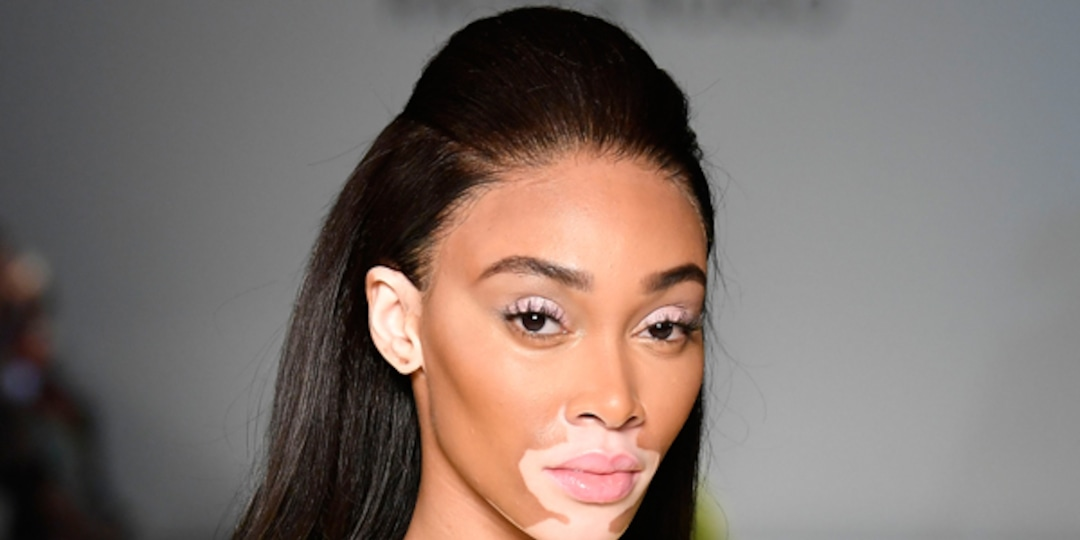 Winnie Harlow Brings Breakfast at Tiffany to Moschino's Fashion Week Show - E! Online.jpg
