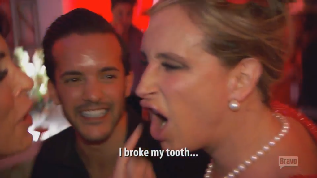 Sonja Morgan, RHONY, Broken Tooth