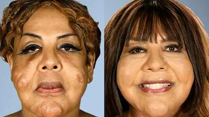 Botched Patients Before and After: Shocking Transformations!